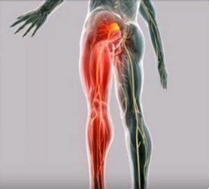 Dolor de pierna izquierda: Causas y Remedios