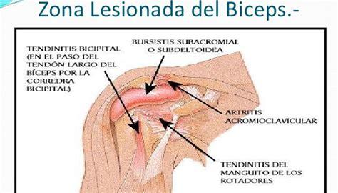 Dolor De Rodilla Al Flexionar - Sus Causas Y Tratamiento ...