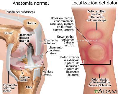 Dolor de rodilla: MedlinePlus enciclopedia médica illustración