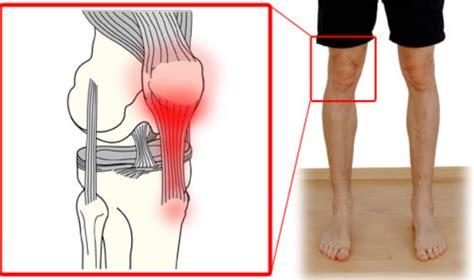 Dolor detrás de la rodilla - detalles que debe saber - Ot ...