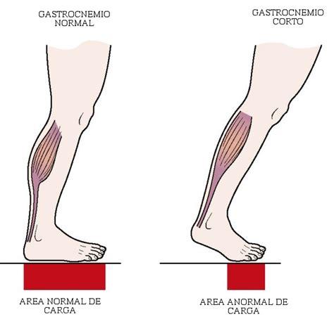 ¿Dolor en los pies por un problema en la rodilla? ¿Es ...