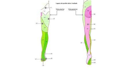 Dolor lumbar irradiado, hernias, ciática y lumbago: ¡¡el ...