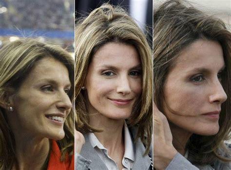 Doña Letizia antes y después de la operación de nariz ...