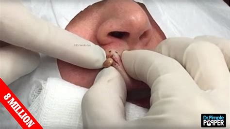 Dr. Pimple Popper claims gruesome viral videos make her ...
