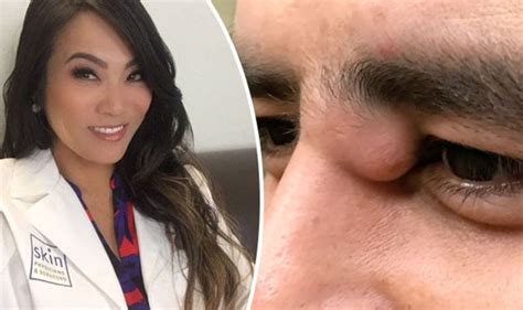 Dr Pimple Popper returns with her most GRUESOME video yet ...