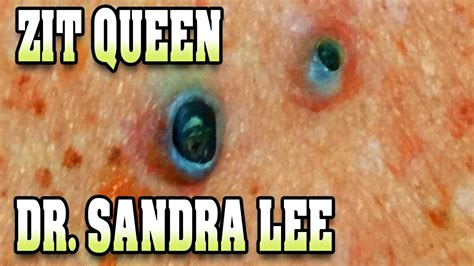 Dr Sandra Lee Facts! Dr Pimple Popper  Clips Not Of Dr ...