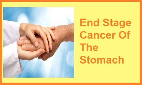 Early Stage Stomach Cancer