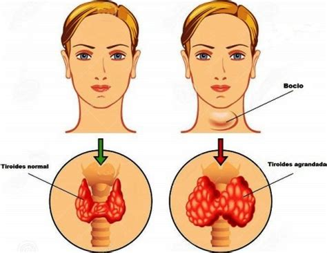 Efectos Secundarios Del Hipotiroidismo - Síntomas Tiroides