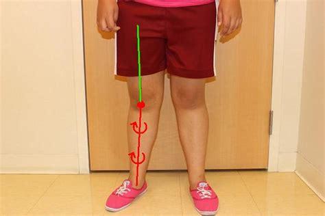 Ejercicio de la semana: Rotación externa de rodilla - Fidias