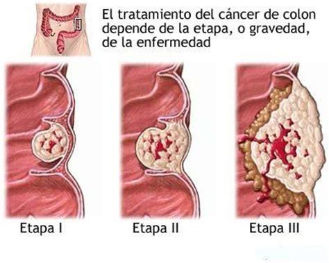 Ejercicio y mejor supervivencia por cáncer de colon   Blog ...