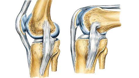 Ejercicios esenciales para fortalecer los ligamentos de ...