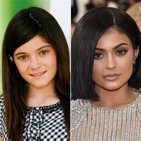 El antes y después de Kylie Jenner