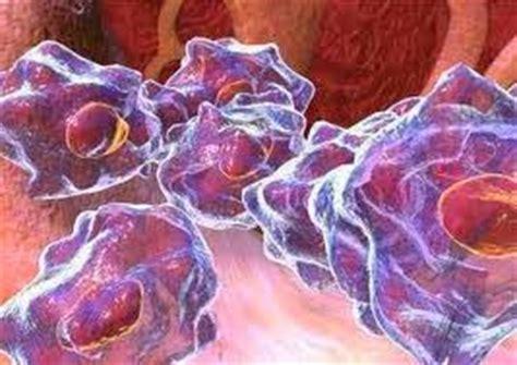 El cáncer de huesos : causas, síntomas , diagnóstico ...