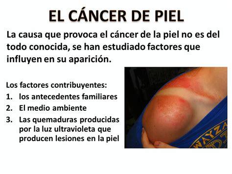 EL CÁNCER DE PIEL La causa que provoca el cáncer de la ...
