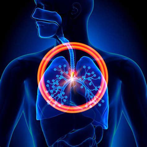 El humo lesiones por inhalación