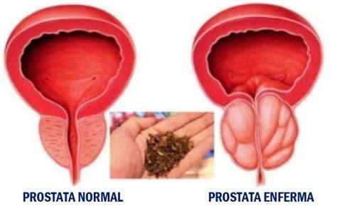 El mejor remedio natural para el cancer de prostata en el ...