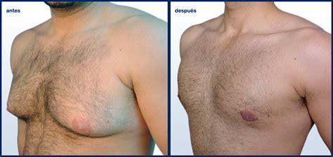 Eliminar grasa en el pecho de los hombres