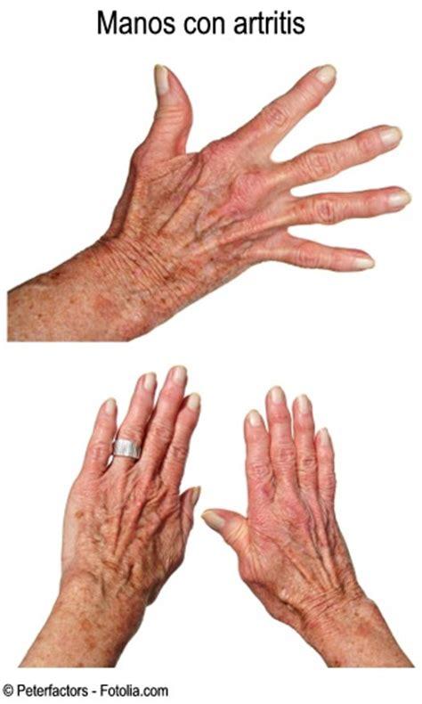 Enciclopedia Salud: Artrosis y Artritis