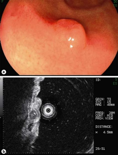 Endoscopic view of gastric metastasis of breast cancer ...