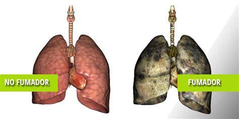 Enfermedad Pulmonar Obstructiva Crónica o enfisema ...
