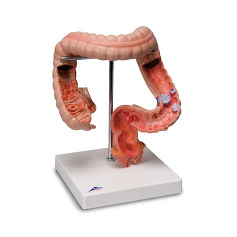Enfermedades del tracto intestinal   1008496   3B ...