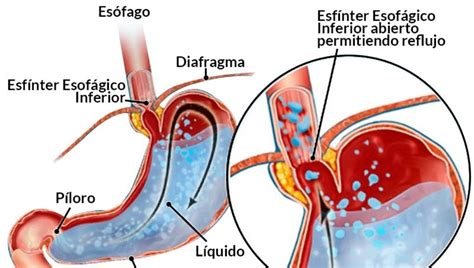 Esfínter Esofágico o Enfermedad de Reflujo Gastroesofágico ...