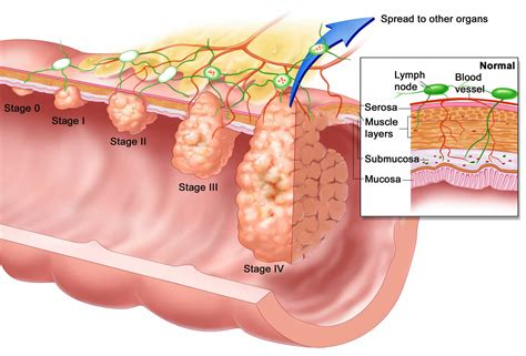 Esophageal Cancer   Causes, Signs, Symptoms, Treatment
