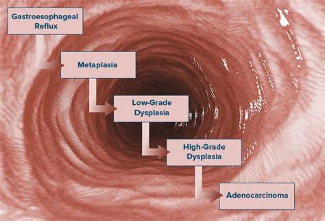 Esophageal Cancer: Devastating and Deadly