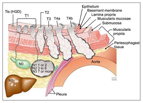 Esophageal Cancer Staging - ScienceCentral