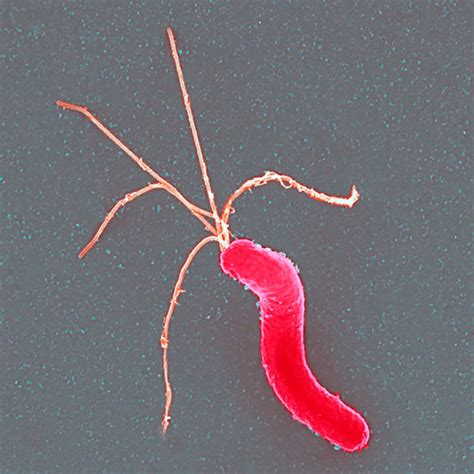 España Mejora el Tratamiento de la Bacteria Helicobacter ...
