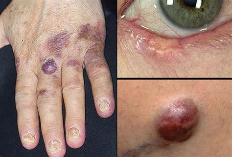 Estas son las señales de advertencia del cáncer de piel ...