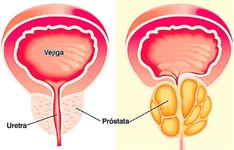 Estas son las señales de alerta del cáncer de próstata ...