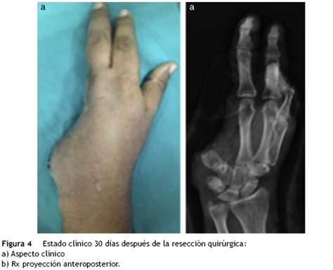 Ewing sarcoma of the proximal phalanx of the little finger ...