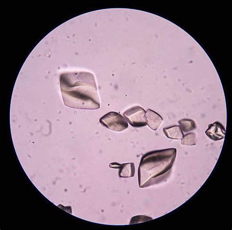 Examen de ácido úrico en sangre, qué es y valores normales