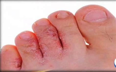 Exceso de acido urico en los pies - remedios caseros para ...