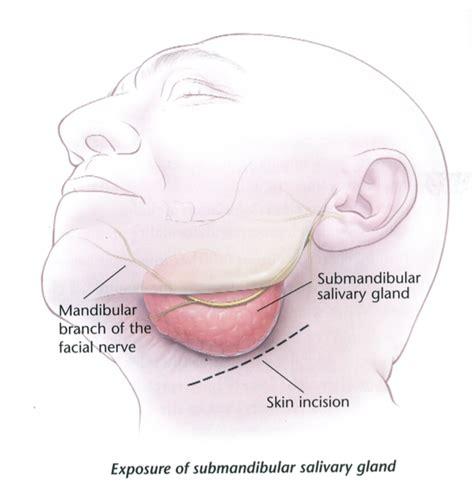 Excision submandibular gland (removing the large saliva ...