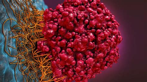 Exploiting the Tumor Microenvironment for Cancer ...