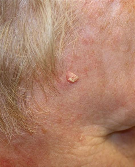 Facial Skin Cancer Gallery - Picture 7 - MedPic.org