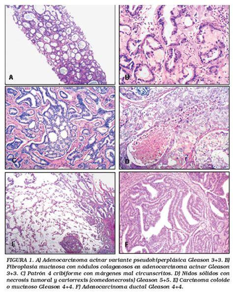 Factores pronósticos y predictivos del carcinoma de ...