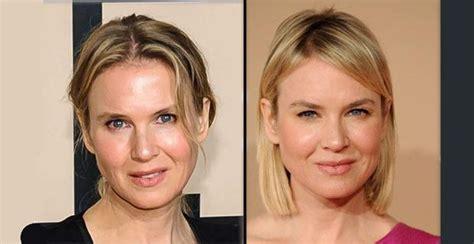 Famosas antes y después de la cirugía estética