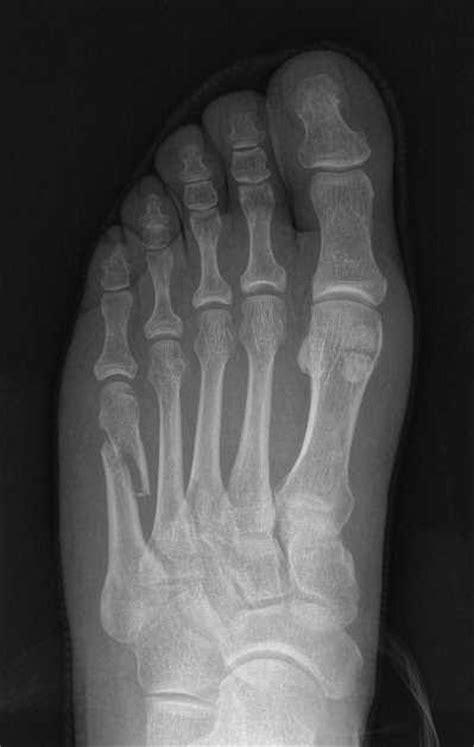 Fanáticos del pie: Fractura 5º metatarsiano