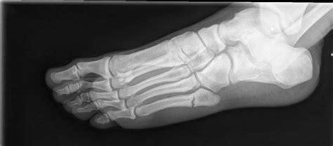 Fanáticos del pie: Fractura quinto metatarsiano