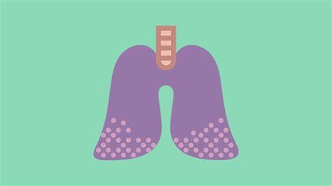 Fases del cáncer de pulmón   Roche Pacientes