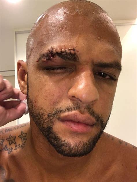 Felipe Melo sofre corte profundo no supercílio após ...