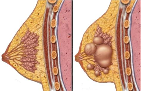 Fibrocystic breast disease; Breast Dysplasia; Fibrocystic ...