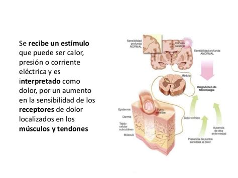 Fibromialgia AFIBRODON