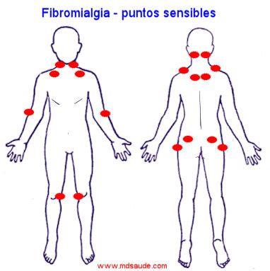 FIBROMIALGIA   Síntomas y Tratamiento » MD.Saúde