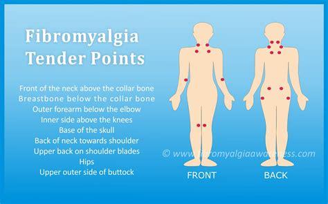 Fibromyalgia Awareness   Information, Tips, Support ...