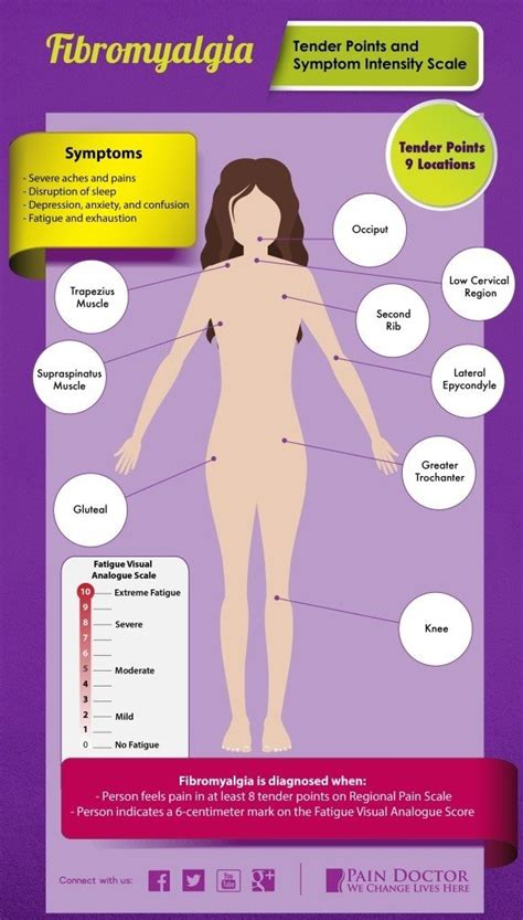 Fibromyalgia Symptoms    27 Of The Most Common Signs