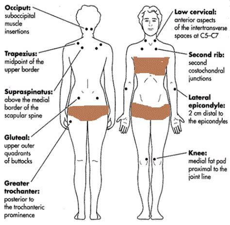 Fibromyalgia Tender Points Chart fibromyalgia tender ...